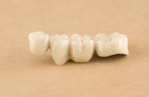 Dental Crowns and Bridges in Santa Fe, NM - Fonseca Dentistry